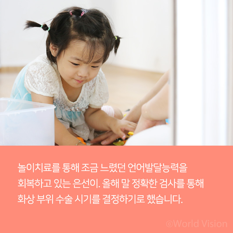 놀이치료를 통해 조금 느렸던 언어발달능력을 회복하고 있는 은선이. 올해 말 정확한 검사를 통해 화상 부위 수술 시기를 결정하기로 했습니다.