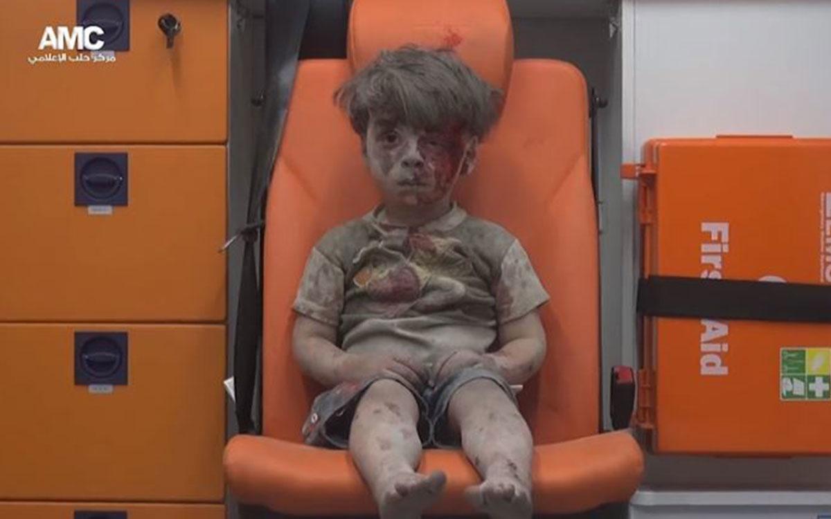 가까스로 구조되어 또 한번 세계의 경각심을 일깨운 시리아 소년, 옴란의 모습 /사진출처: 알레포미디어센터(AMC)