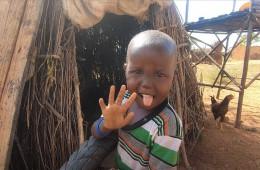 영양실조로 뼈만 남아 위태로운 아이가 건강하게 자라 밝게 웃고 있는 모습